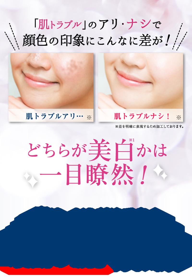 """「肌トラブル」のアリ・ナシで顔色の印象にこんなに差が! 実は、シミだけでなく様々な肌トラブルが「美白(※1)」の""""邪魔""""をしています。"""